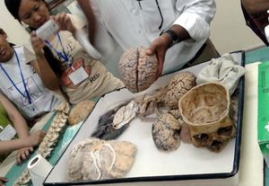 NIMHANS Brain Museum 1/undefined by Tripoto
